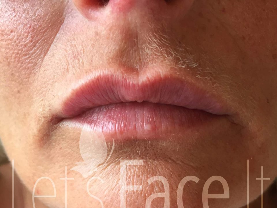Lip Fillers - Buntingford