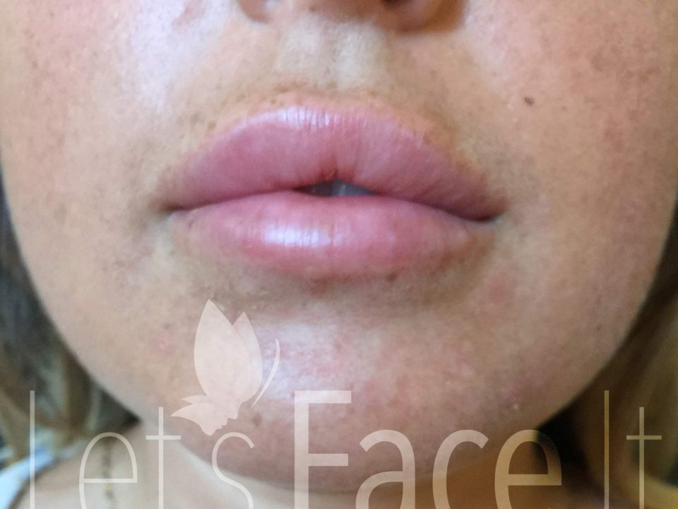 Lip Fillers - Enfield