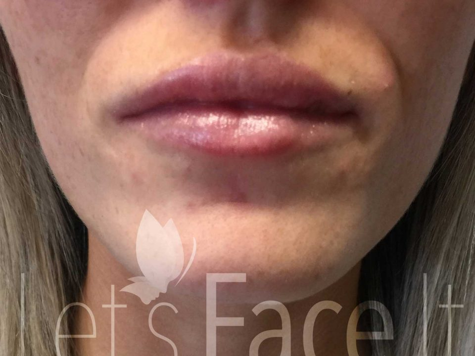 Lip Fillers - Competition Winner