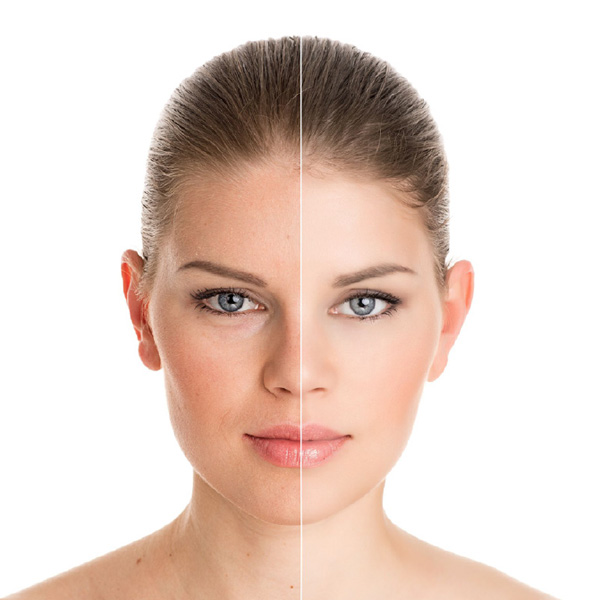 Beauty Facials Before & After